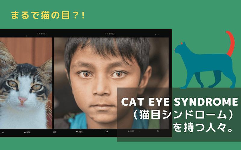 まるで猫の目?Cat Eye Syndromeをもつ人々について