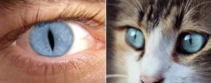 キャットアイ症候群の人間と猫